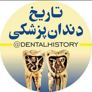 کانال تاریخ دندانپزشکی